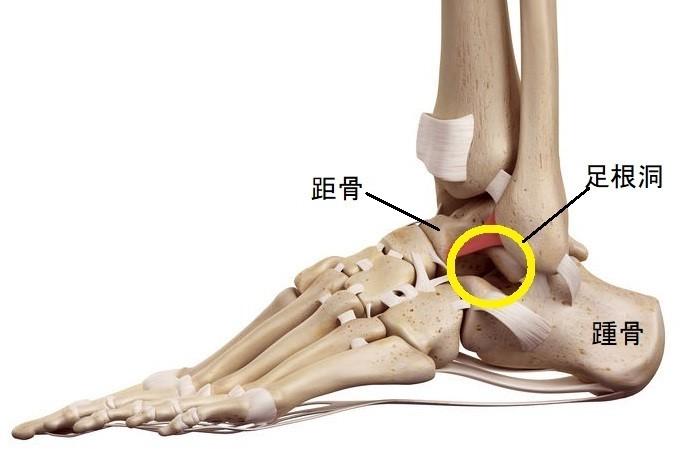 前 距 腓 靭帯 くるぶし